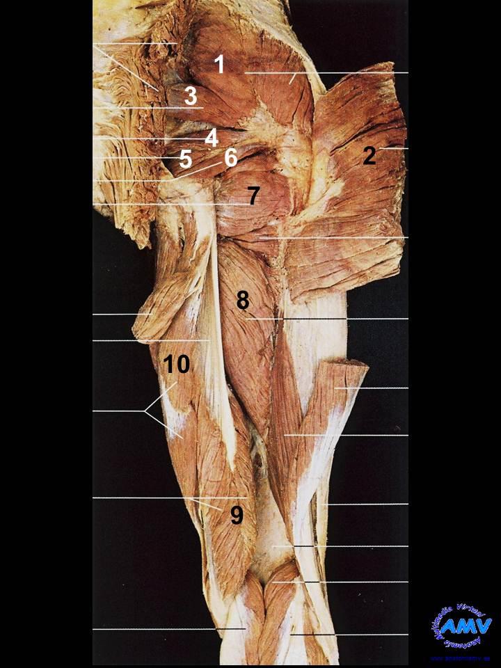 Disección Región Posterior del Muslo II